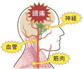 頭痛の方の多くは、首のつけねや目の奥に重みを感じています。