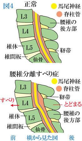 分離すべり症の脊柱管