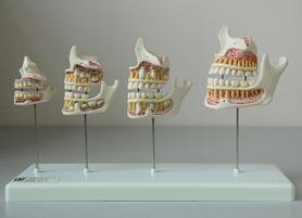 Ästhetische Zahnheilkunde - Zahnarztpraxis & Implantologie Dr. med. dent. Malte Uhrigshardt Tornesch im Kreis Pinneberg