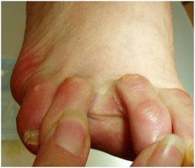 Mycoses  avec risque de colonisation sur l'ensemble du pied