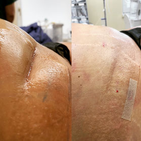 Subzision in Lokalanästhesie bei eingezogener Blinddarmnarbe