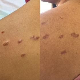 Abflachung von hypertrophen Narben bereits nach einer Injektionstherapie