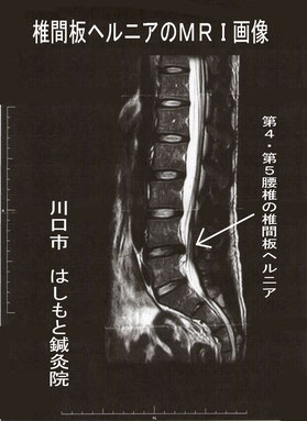 患者さんのMRI画像(掲載許可済みです)