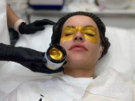 Уход за областью глаз, синяки под глазами, проблемная кожа, косметология Реутов Новокосино, SPATERRA, косметолог, убрать мешки по глазами, histomer, golden code