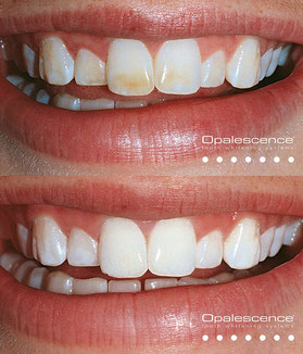 Bleaching (vorher / nachher) - Zahnarztpraxis & Implantologie Dr. med. dent. Malte Uhrigshardt Tornesch im Kreis Pinneberg