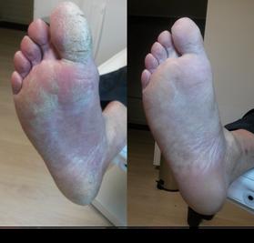 Eelt verwijdert door Voetenpraktijk Zundert  aan de voeten bij medisch pedicure Voetenpraktijk Zundert