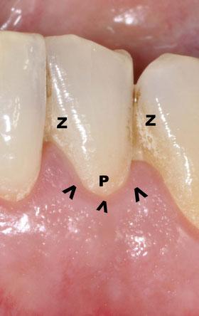 Zahnfleischentzündung ist nicht schwer zu erkennen