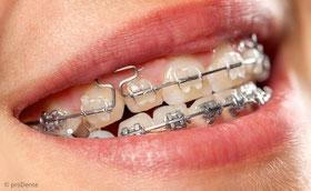 Festsitzende Zahnspangen dienen der genauen Ausrichtung der Zähne.