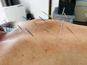 小牧 鍼灸 鍼治療 はりきゅう 自律神経 腰痛 頭痛 肩こり 胃痛