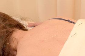 うつぶせ寝での治療のイメージです