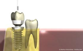 Implantate: Fest wie eigene Zähne
