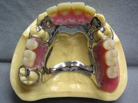 局部床義歯(金属床)