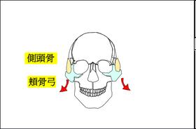 頬骨弓が横に張り出します。