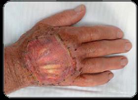 MatriDerm Anwendung am Patienten auf der Hand, verheiltes Foto