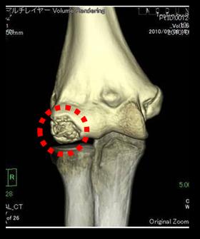 野球肘外側部障害(小頭障害) で手術になった例 骨、軟骨が壊死している (中学生)