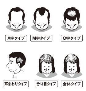 タイプ別抜け毛予防法