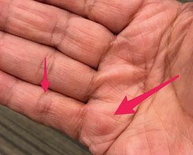 ☆山根の手のひら。矢印の先が肥厚しています。
