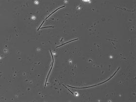 Mikroben in Nahansicht. Sie stellen rund 70 Prozent der Biomasse auf Erden – sind aber weitgehend unerforscht.  Wen-Tso Liu