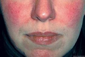 Hauterkrankungen wie Neurodermitis (atopisches Ekzem), Psoriasis (Schuppenflechte), Vitiligo (Weissfleckenkrankheit), Akne, Rosacea, periorale Dermatitis, dyshidrotisches Ekzem, nummuläres Ekzem, Lichen simplex oder Pityriasis