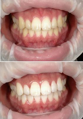 八戸市 歯医者 くぼた歯科 安い 料金 ホワイトニング おすすめ ポリリン