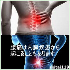 腰痛は内臓疾患から起こることもあります