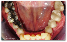 Links: Amalgam-Füllungen. Rechts: Keramik-Inlays (© Dr. Hartmut Sauer