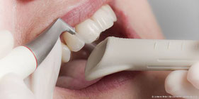 Sorgfältige Zahnreinigung gegen hartnäckige Zahnbeläge (© Johann Peter Kierzkowski - proDente e.V.)