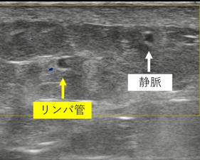 超音波検査 リンパ管 静脈 リンパ管静脈吻合術