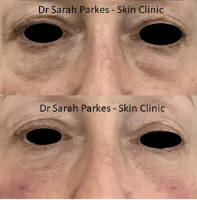 Tear trough filler Dr Sarah Parkes Skin Clinic