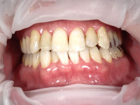 八戸市 歯医者 くぼた歯科 ホワイトニング ポリリン 安い おすすめ
