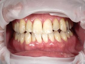 八戸市 くぼた歯科 ポリリンホワイトニング 安い おすすめ