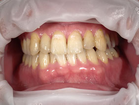 八戸市 くぼた歯科医院 ホワイトニング おすすめ 安い ポリリン