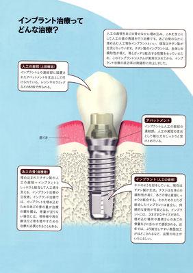 たかす歯科クリニックインプラント