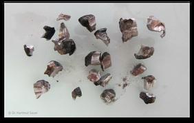 Entfernung des Amalgams in großen Stücken, um die Quecksilberdampf-Bildung zu verringern (© Dr. Hartmut Sauer)