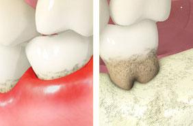 中程度の歯周炎