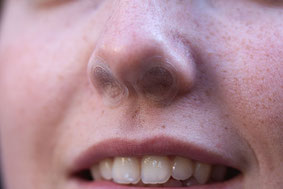 Die aufgeklebten Nasenfilter
