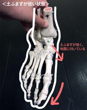 土ふまずが低くなるとくるぶし・足首の位置が変わります