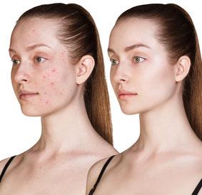 Schöne Haut nach Akne Therapie