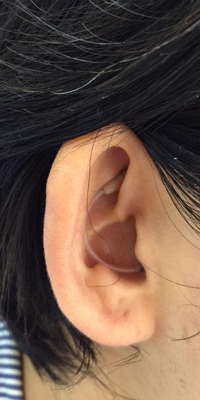 吹田補聴器 装着例