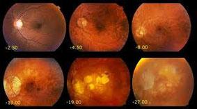 Esempi di sofferenza retinica da alta miopia.