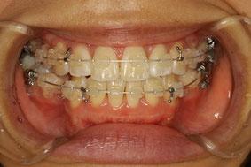 矯正中の歯ブラシ