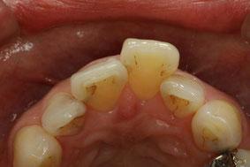 1本出っ歯