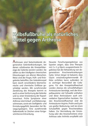 Hilfe bei Arthrose