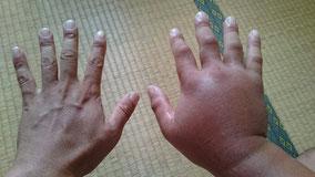 腫れた右手