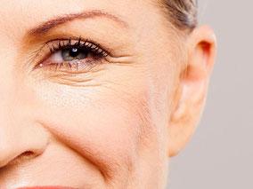 Bild: Faltenunterspritzung im Nasen- und Wangenbereich