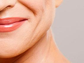 Bild: Faltenunterspritzung im Lippen- und Kinnbereich