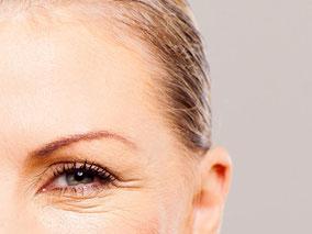 Bild: Faltenunterspritzung im Strin- und Augenbereich