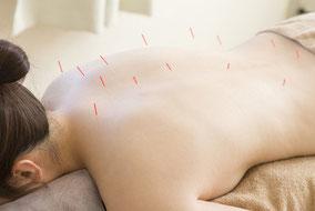 Akupunktur und Kräutermedizin