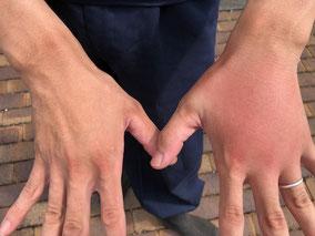 腫れた左手