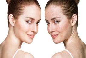 Desinfektion, ozonisiertes Olivenöl oder Ozonöl zur Hautpflege und Wundheilung